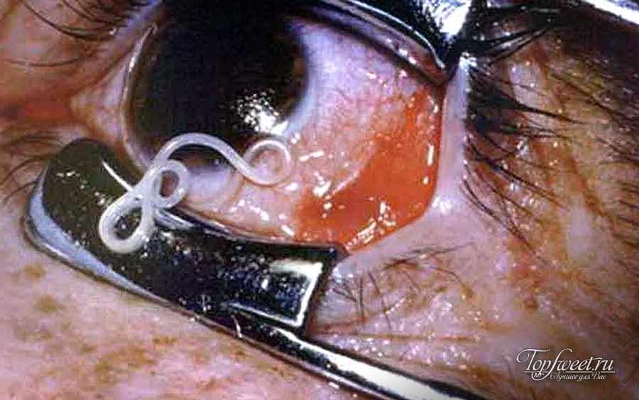 Токсокароз глазной
